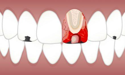 Zapalenie miazgi zęba